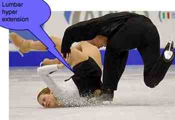 An extension injury as in the skating accident can cause whiplash to the lumbar facets.