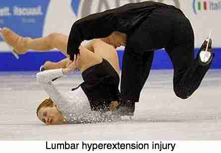 A photograph of a skating accident causing a lumbar hyperextension injury.