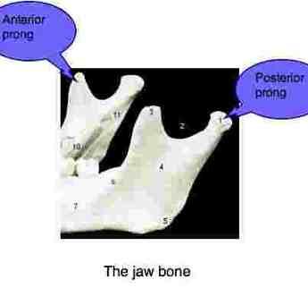 Migraine headache TMJ bones