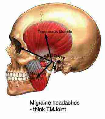 Migraine headaches temporalis and masseter muscles