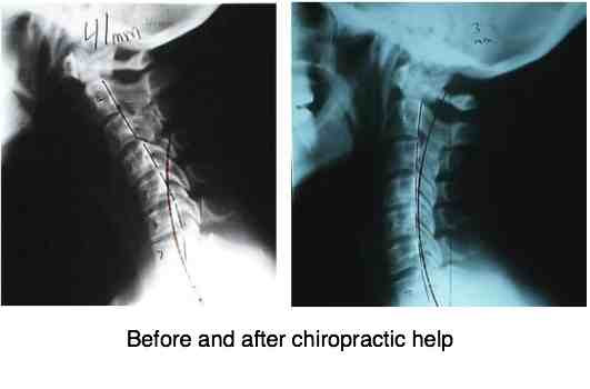Neck Pain Treatment Asks What Chiropractic Offers
