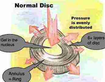 The normal disc structure.