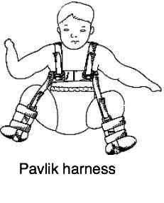Pavlik harness is a must if a baby is diagnosed with hip dysplasia.
