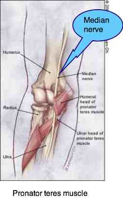 Diagram showing how the pronator teres muscle can cause carpal tunnel syndrome.