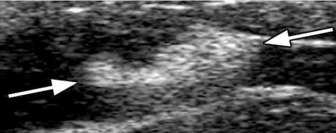 Scar tissue seen on an ultrasound scan.