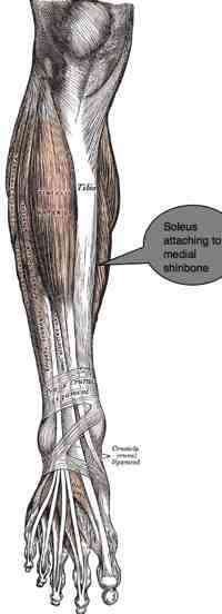 Shin splints affects the medial soleus.