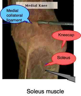 Gross anatomy photograph of the soleus muscle that causes shin splints.