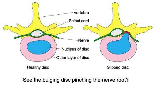 Slipped disc pinching the nerve root.