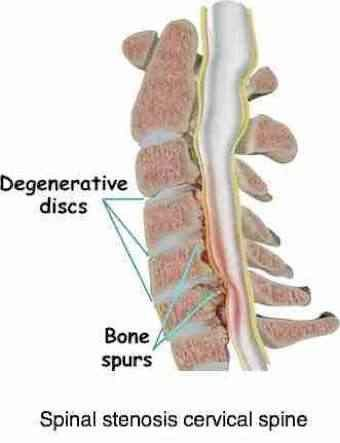 Symptoms of cervical stenosis include pressure on the spinal cord.