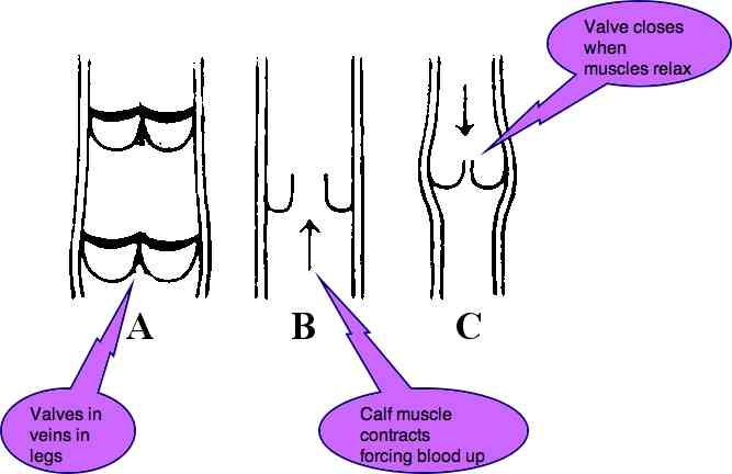 Varicose veins in legs