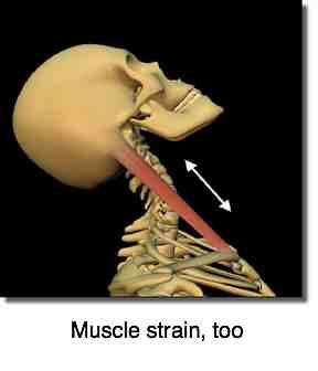 Whiplash causes SCM strain.