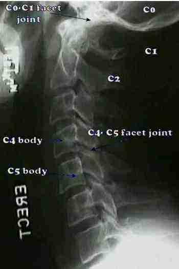 Whiplash x-ray