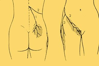 Maignes syndrome distribution
