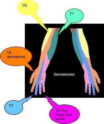 C8 dermatome, and the ulnar nerve distribution.