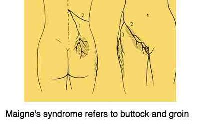Maignes syndrome referred pain pattern.