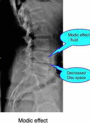 Only an xray will determine if there are bony changes occuring.