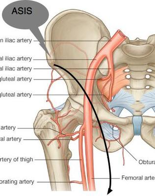 Lighten up as you cross the femoral artery and nerve.