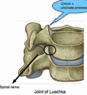 Uncovertebral = joint of Luschka