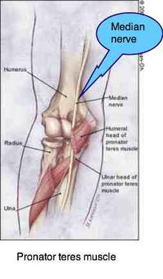 The pronator teres can cause severe pain radiating down the lower arm to the fingers.