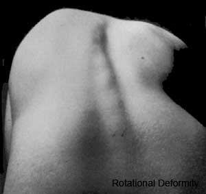 Scoliosis of the spine.