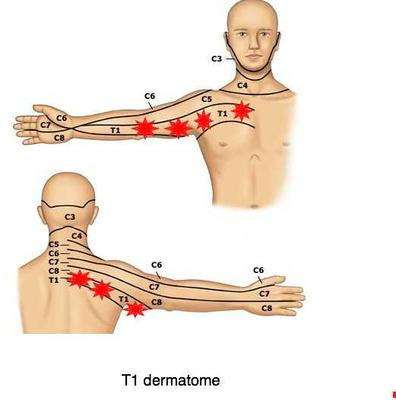 T1 dermatome from the lower neck