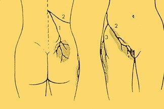 Maignes syndrome radiation.