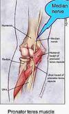 Pronator teres affecting median nerve