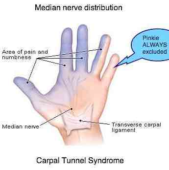 The little finger is always excluded in carpal tunnel.